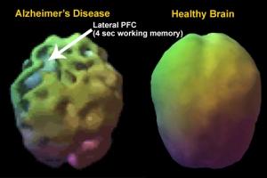 alzheimers-brain-function