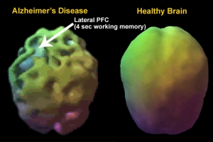 alzheimers-brain-function